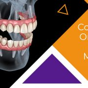 Dental Implants Mistakes To Avoid