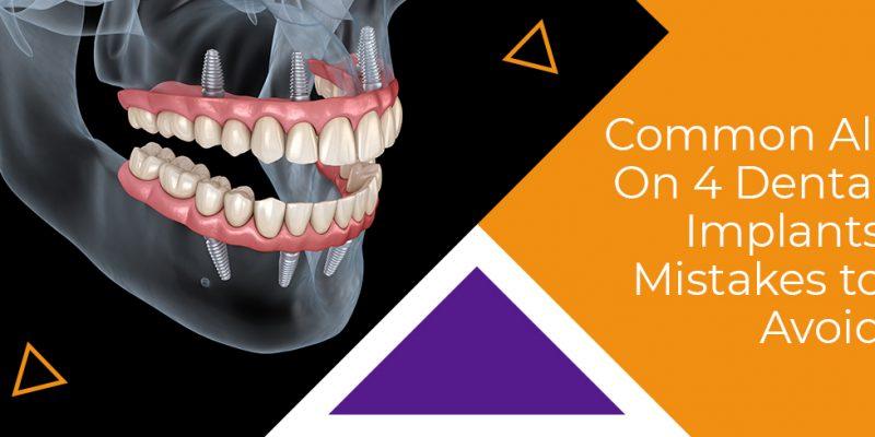 Dental Implants Mistakes To Avoid